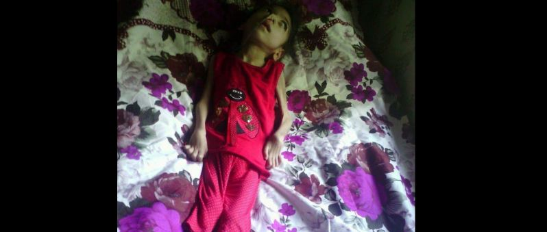 Photo of პატარა გოგო ვერ ხედავს, ვერ დადის, ვერ საუბრობს _ ზოგ ბავშვს ცხოვრება ასე დაუნდობლად რატომ ექცევა?!